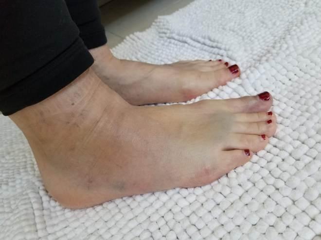 Broken bone in foot